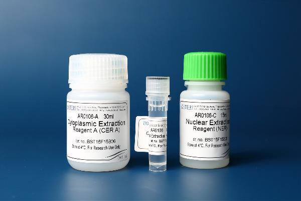 شما می توانید محصولات شرکت Bosterbio را در سایت آثل طب مشاهده کنید .