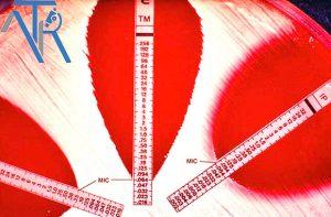 تعیین-حساسیت-ضدمیکروبی-با-روش-Epsilometer-test-(E-test)